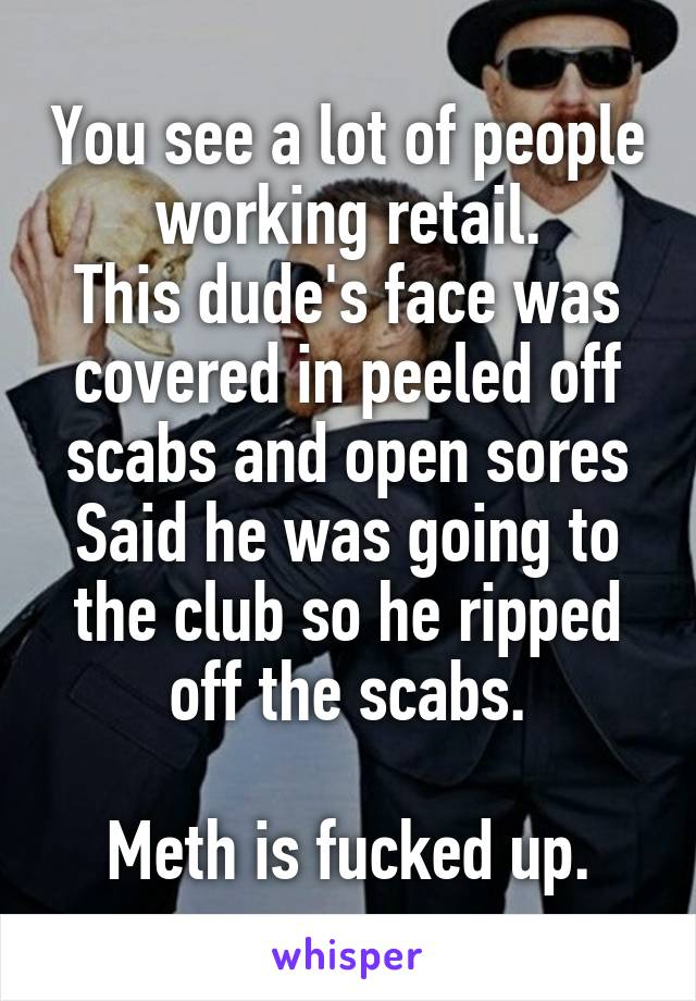 You see a lot of people working retail. This dude's face was covered in peeled off scabs and open sores Said he was going to the club so he ripped off the scabs.  Meth is fucked up.