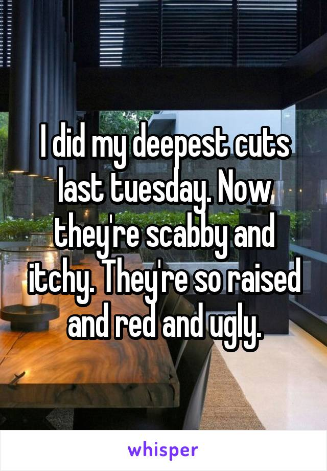 I did my deepest cuts last tuesday. Now they're scabby and itchy. They're so raised and red and ugly.
