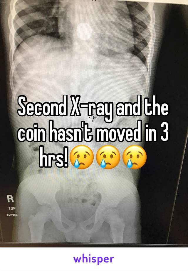 Second X-ray and the coin hasn't moved in 3 hrs!😢😢😢