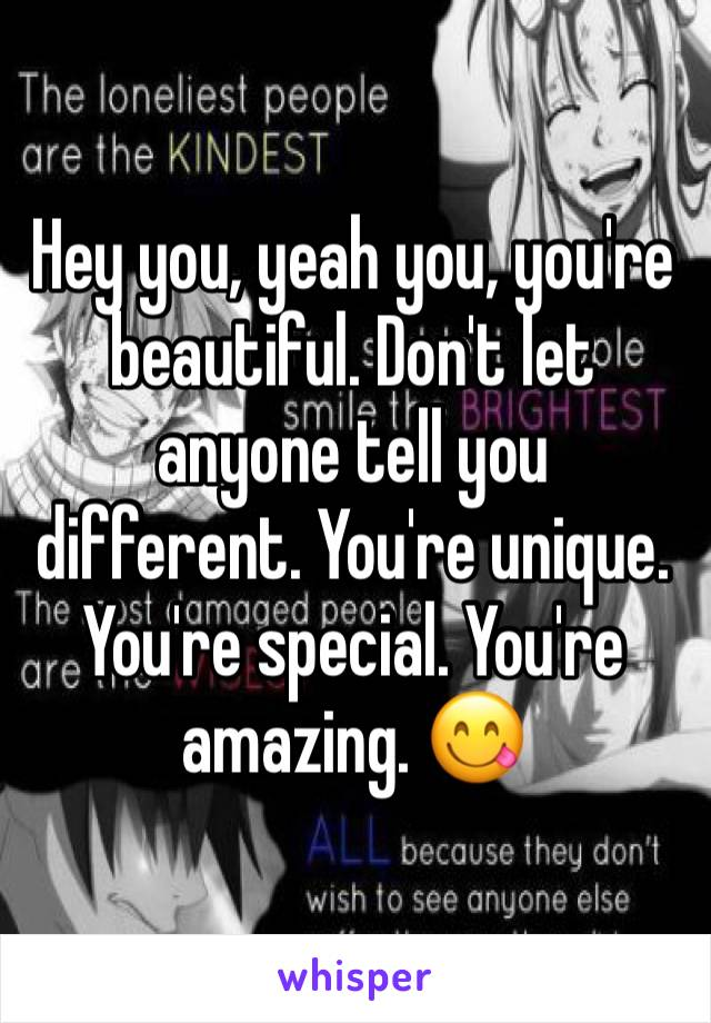 Hey you, yeah you, you're beautiful. Don't let anyone tell you different. You're unique. You're special. You're amazing. 😋