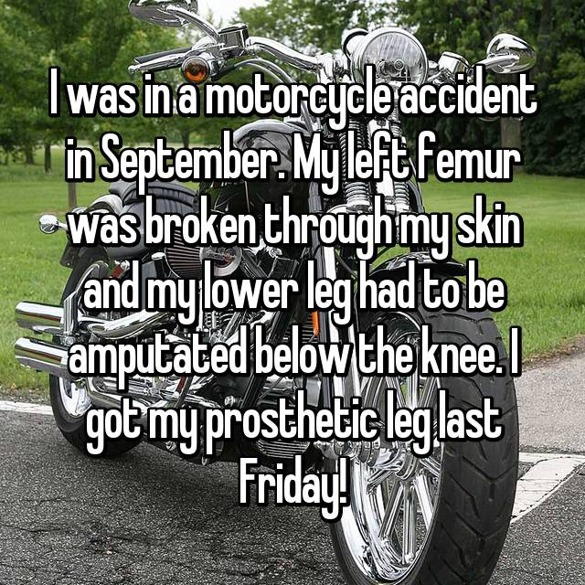 I was in a motorcycle accident in September. My left femur was broken through my skin and my lower leg had to be amputated below the knee. I got my prosthetic leg last Friday!