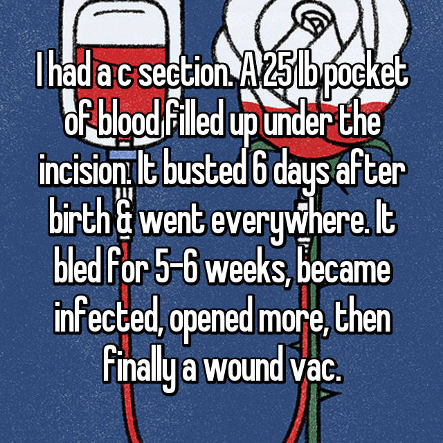 I had a c section. A 25 lb pocket of blood filled up under the incision. It busted 6 days after birth & went everywhere. It bled for 5-6 weeks, became infected, opened more, then finally a wound vac.