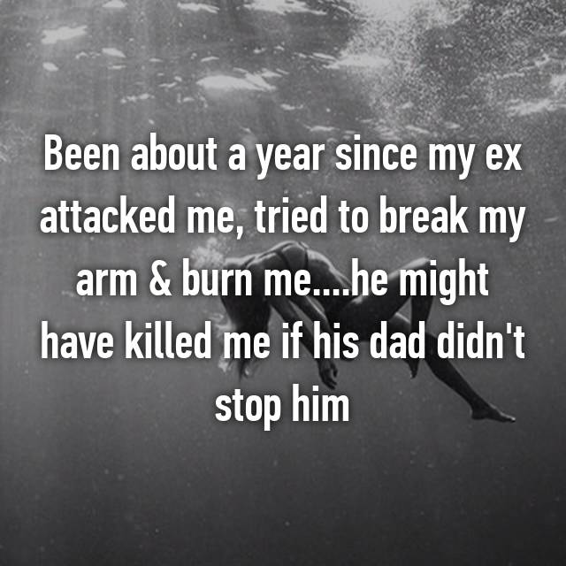 Been about a year since my ex attacked me, tried to break my arm & burn me....he might have killed me if his dad didn't stop him 💔😥