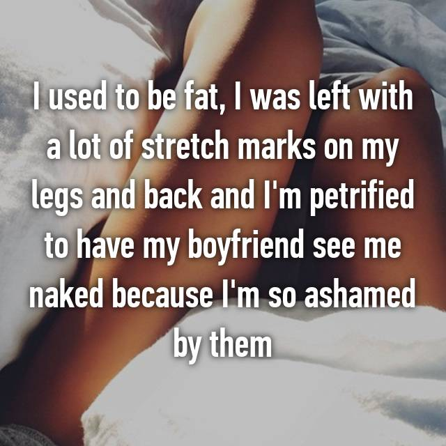 I used to be fat, I was left with a lot of stretch marks on my legs and back and I'm petrified to have my boyfriend see me naked because I'm so ashamed by them