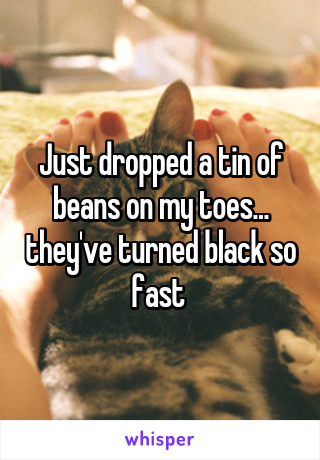 Just dropped a tin of beans on my toes... they've turned black so fast