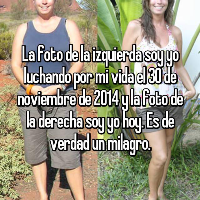 La foto de la izquierda soy yo luchando por mi vida el 30 de noviembre de 2014 y la foto de la derecha soy yo hoy. Es de verdad un milagro.