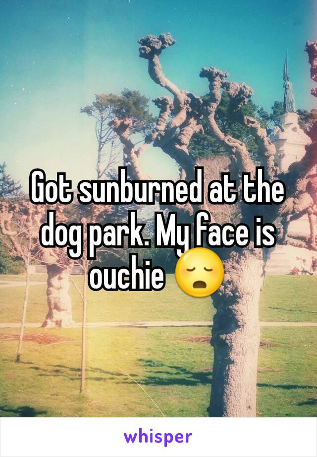 Got sunburned at the dog park. My face is ouchie 😳