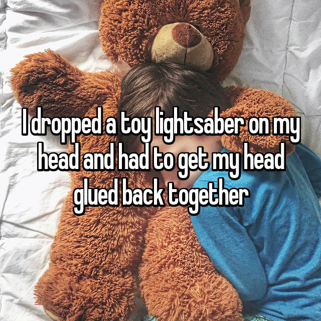 I dropped a toy lightsaber on my head and had to get my head glued back together