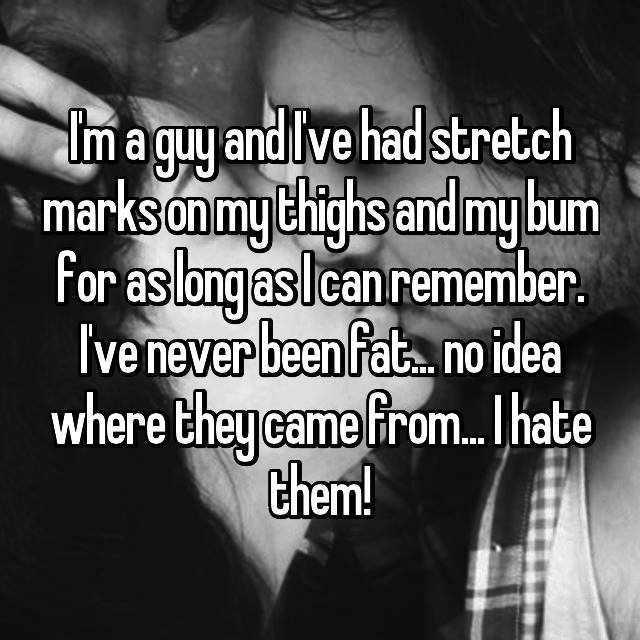 I'm a guy and I've had stretch marks on my thighs and my bum for as long as I can remember. I've never been fat... no idea where they came from... I hate them!