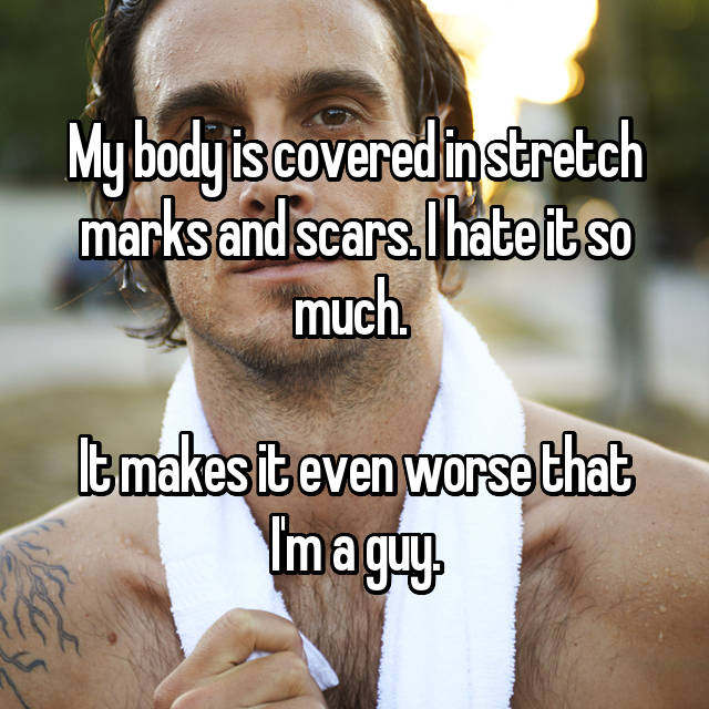 My body is covered in stretch marks and scars. I hate it so much.   It makes it even worse that I'm a guy.