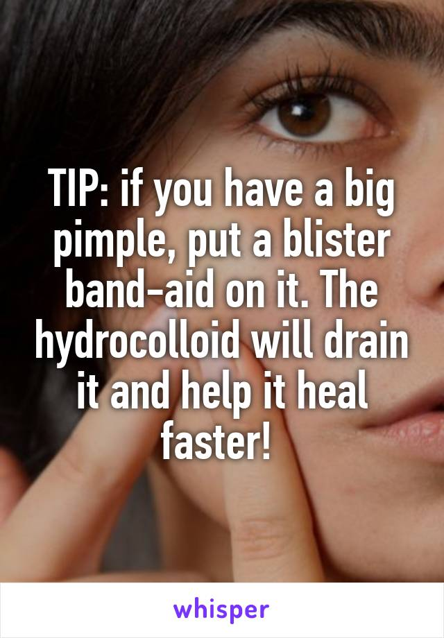 TIP: if you have a big pimple, put a blister band-aid on it. The hydrocolloid will drain it and help it heal faster!