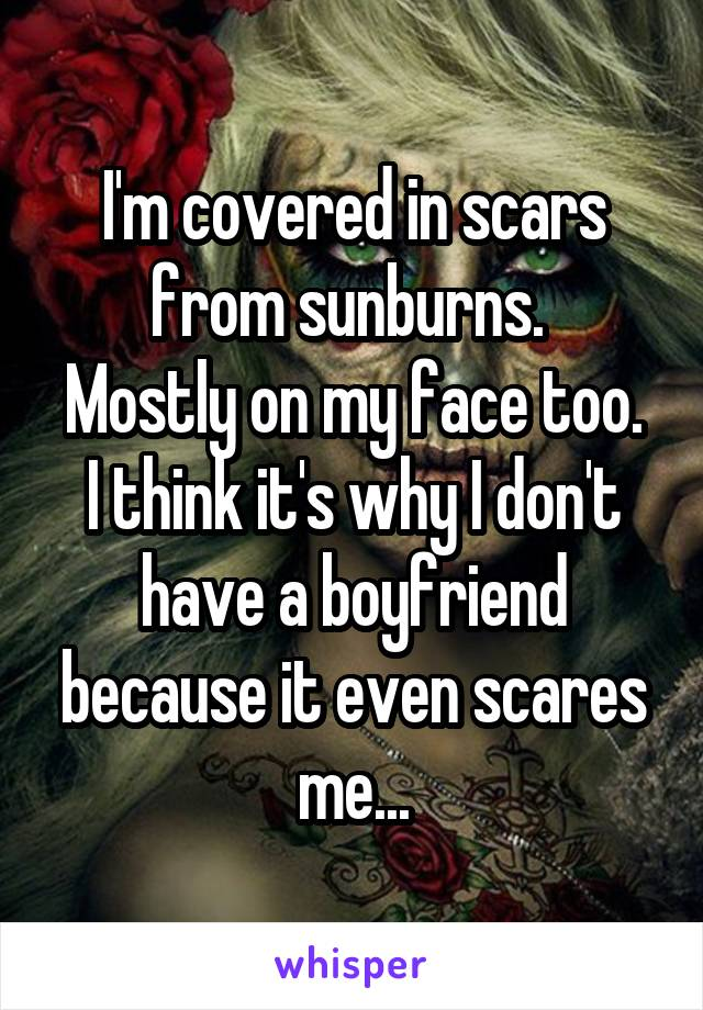 I'm covered in scars from sunburns.  Mostly on my face too. I think it's why I don't have a boyfriend because it even scares me...