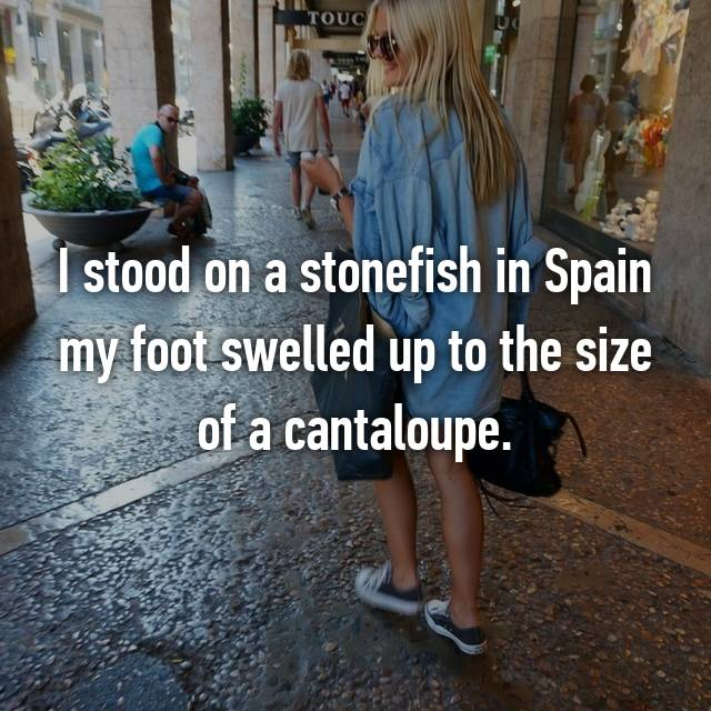 I stood on a stonefish in Spain my foot swelled up to the size of a cantaloupe.