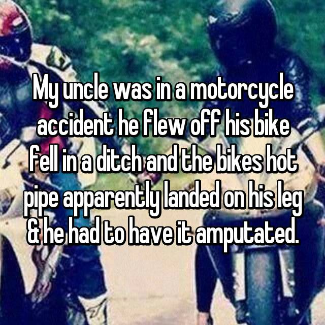 My uncle was in a motorcycle accident he flew off his bike fell in a ditch and the bikes hot pipe apparently landed on his leg & he had to have it amputated.