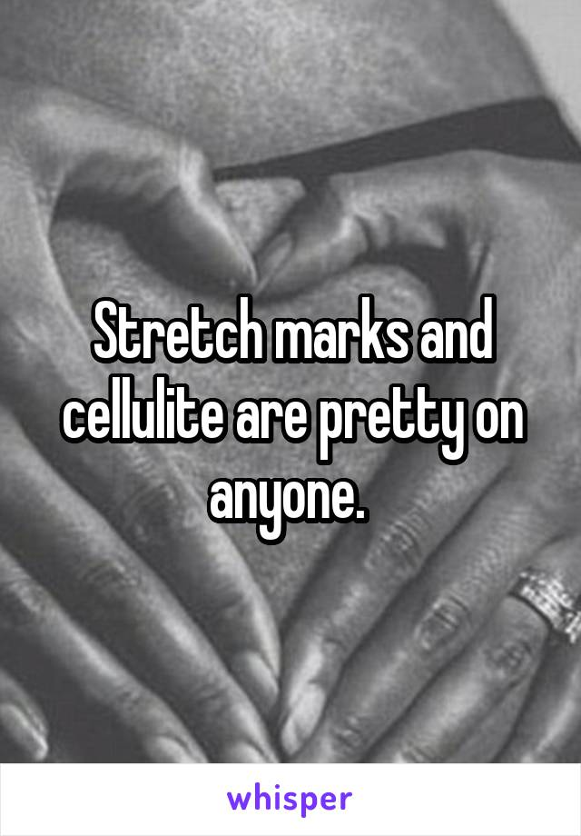 Stretch marks and cellulite are pretty on anyone.
