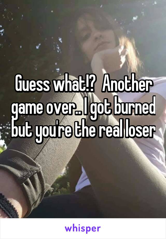 Guess what!?  Another game over.. I got burned but you're the real loser