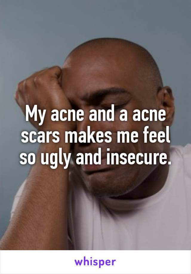 My acne and a acne scars makes me feel so ugly and insecure.