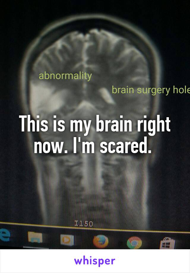 This is my brain right now. I'm scared.