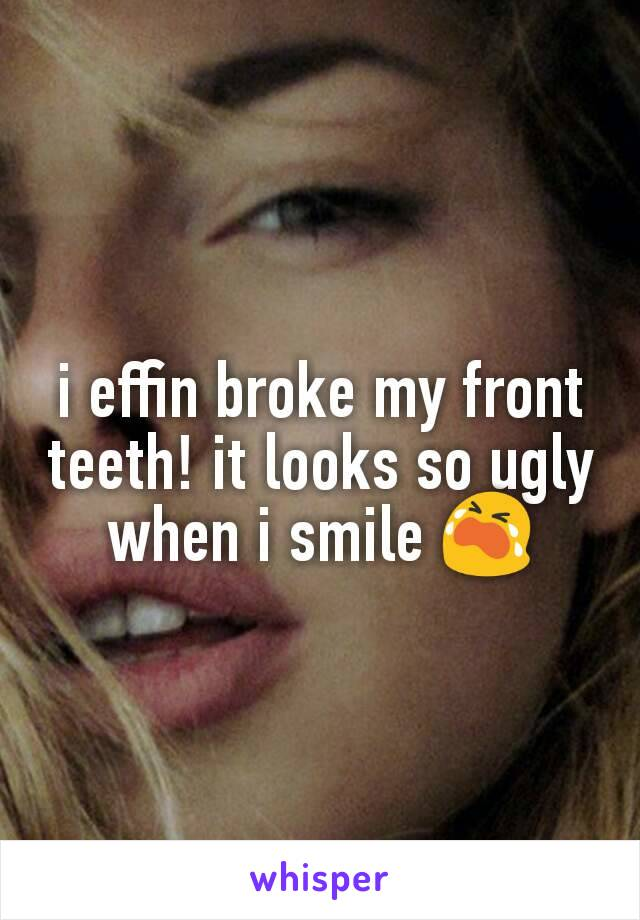 i effin broke my front teeth! it looks so ugly when i smile 😭