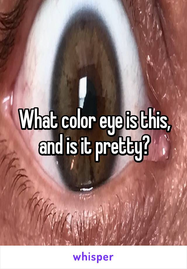 What color eye is this, and is it pretty?