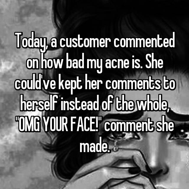 "Today, a customer commented on how bad my acne is. She could've kept her comments to herself instead of the whole, ""OMG YOUR FACE!"" comment she made."