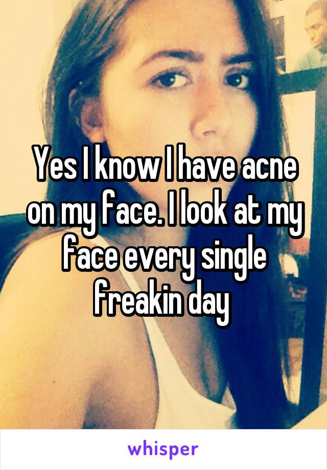 Yes I know I have acne on my face. I look at my face every single freakin day