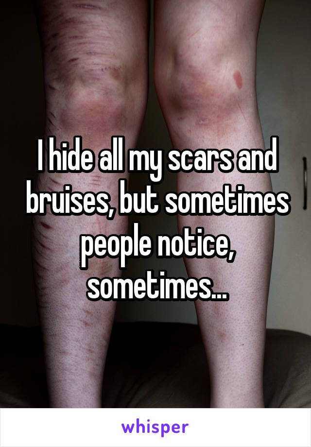 I hide all my scars and bruises, but sometimes people notice, sometimes...