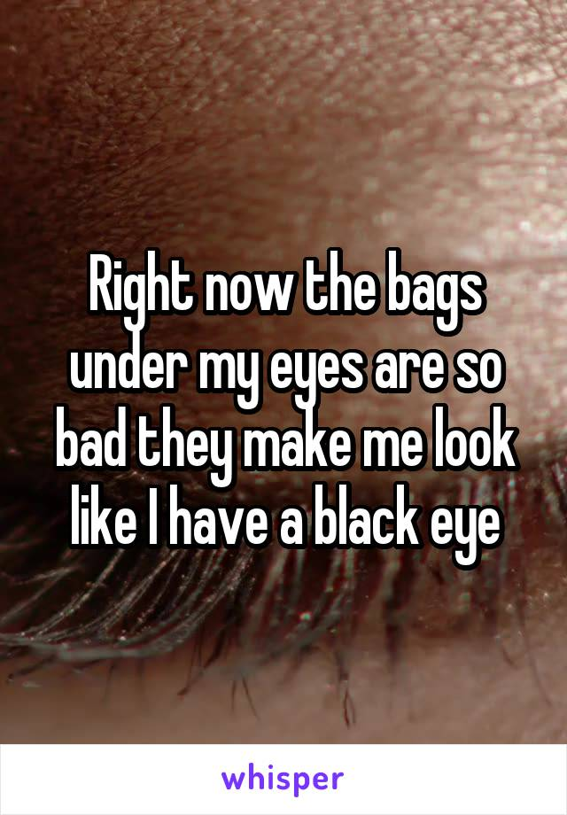 Right now the bags under my eyes are so bad they make me look like I have a black eye