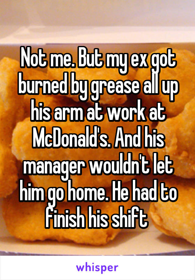 Not me. But my ex got burned by grease all up his arm at work at McDonald's. And his manager wouldn't let him go home. He had to finish his shift
