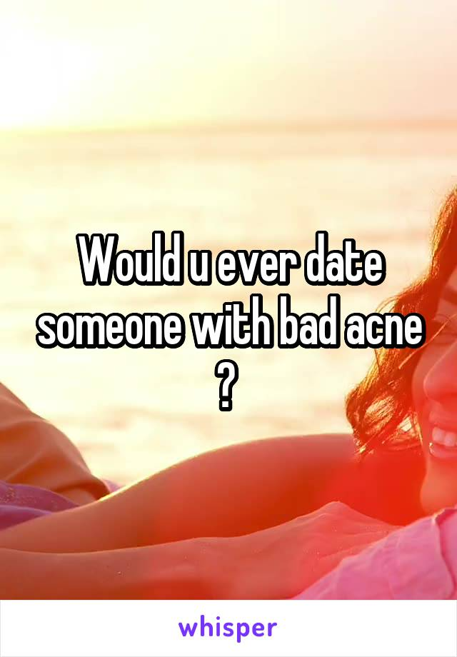 Would u ever date someone with bad acne ?