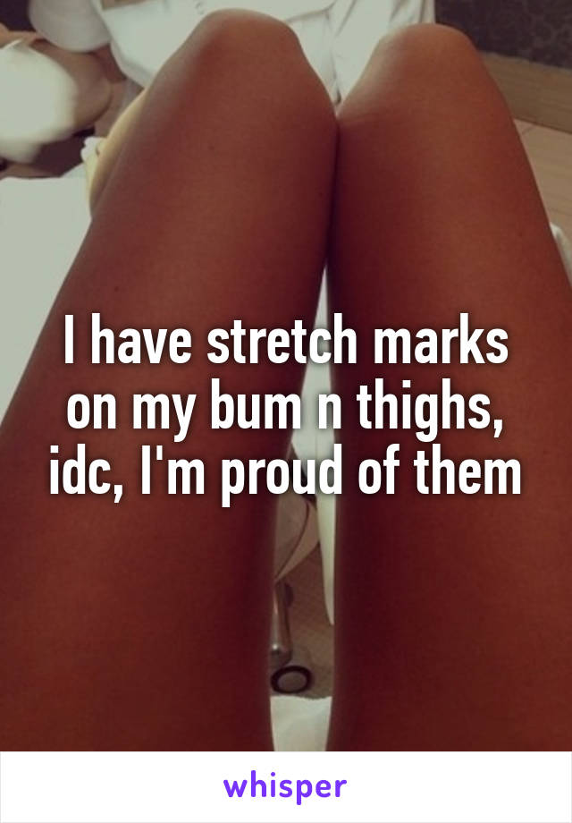 I have stretch marks on my bum n thighs, idc, I'm proud of them