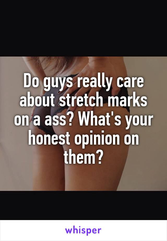 Do guys really care about stretch marks on a ass? What's your honest opinion on them?