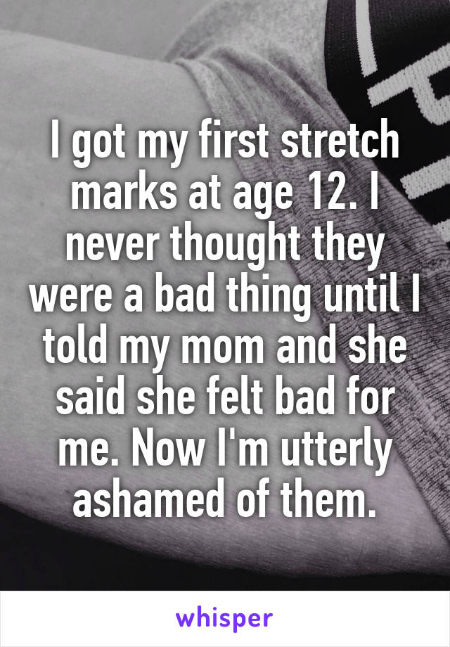 I got my first stretch marks at age 12. I never thought they were a bad thing until I told my mom and she said she felt bad for me. Now I'm utterly ashamed of them.