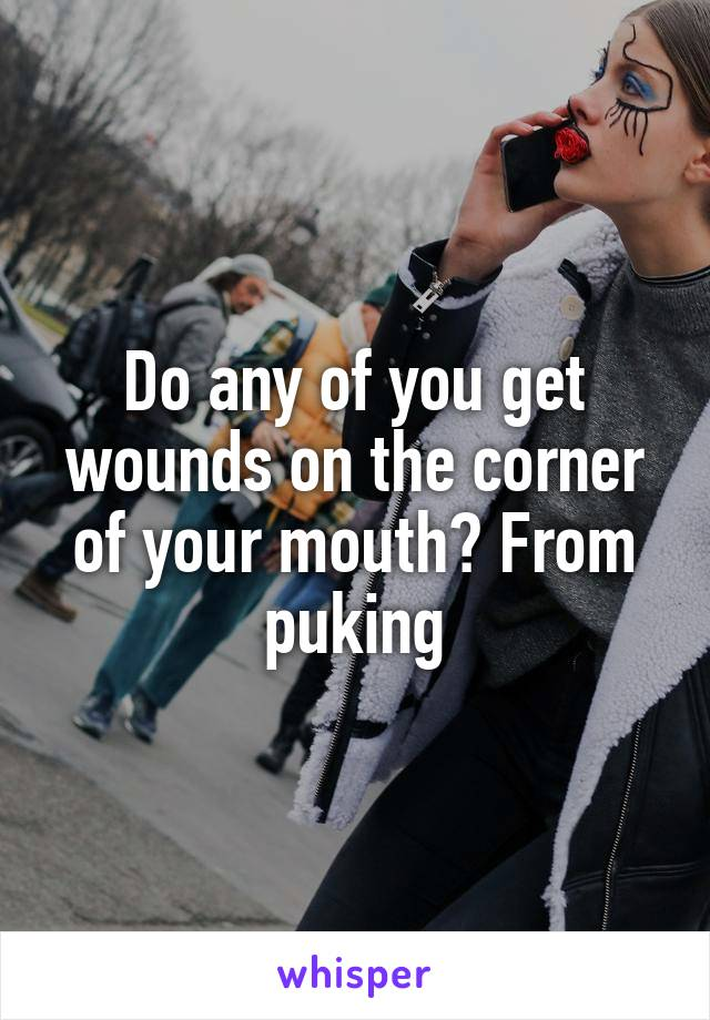 Do any of you get wounds on the corner of your mouth? From puking
