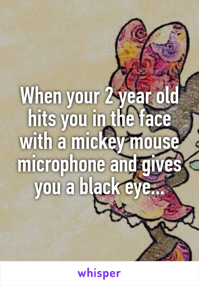 When your 2 year old hits you in the face with a mickey mouse microphone and gives you a black eye...