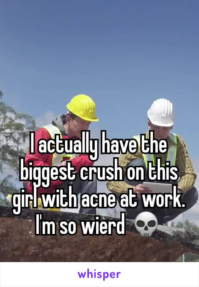 I actually have the biggest crush on this girl with acne at work. I'm so wierd 💀