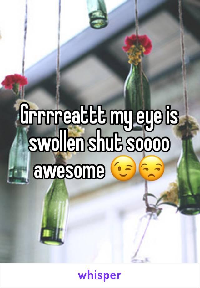 Grrrreattt my eye is swollen shut soooo awesome 😉😒