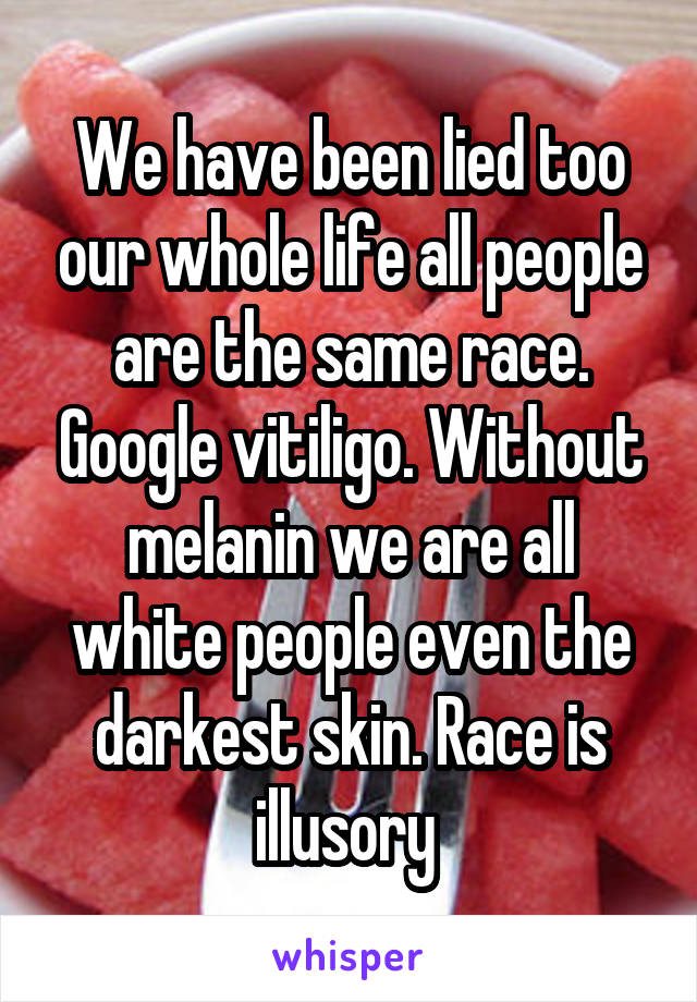 We have been lied too our whole life all people are the same race. Google vitiligo. Without melanin we are all white people even the darkest skin. Race is illusory