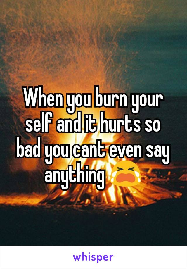 When you burn your self and it hurts so bad you cant even say anything 😭