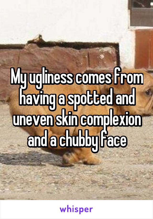 My ugliness comes from having a spotted and uneven skin complexion and a chubby face