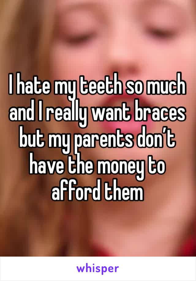 I hate my teeth so much and I really want braces but my parents don't have the money to afford them