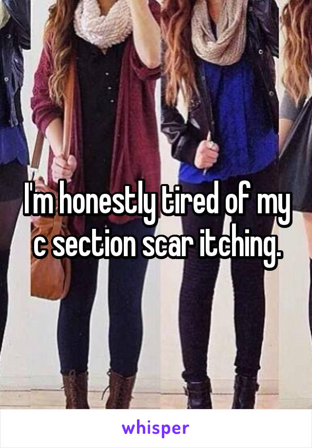 I'm honestly tired of my c section scar itching.
