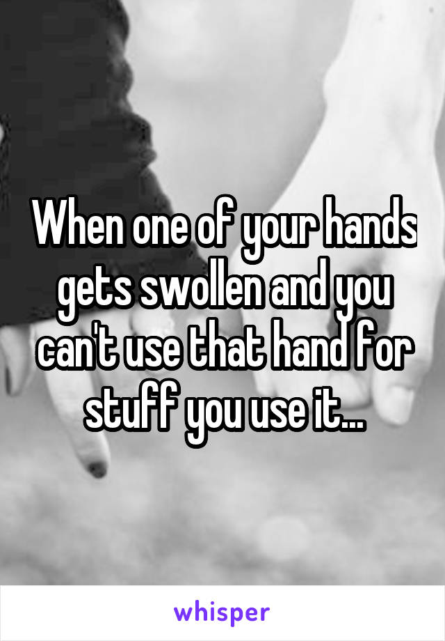 When one of your hands gets swollen and you can't use that hand for stuff you use it...