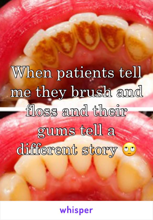When patients tell me they brush and floss and their gums tell a different story 🙄