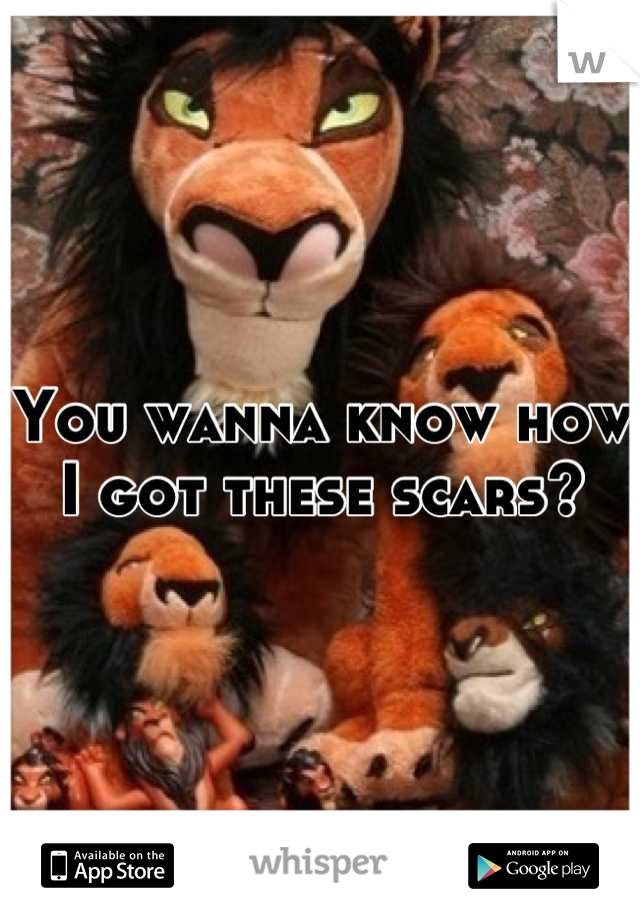 You wanna know how I got these scars?