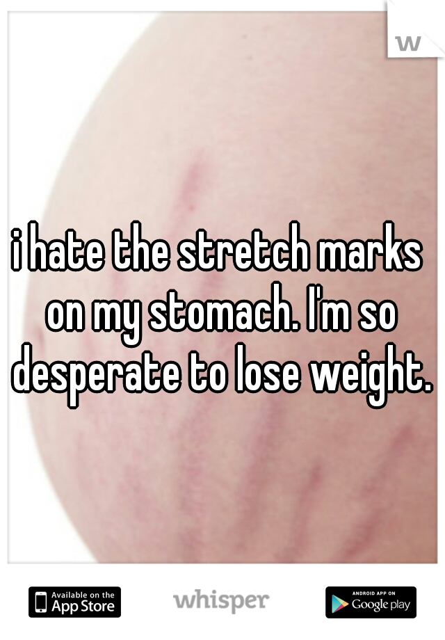 i hate the stretch marks on my stomach. I'm so desperate to lose weight.