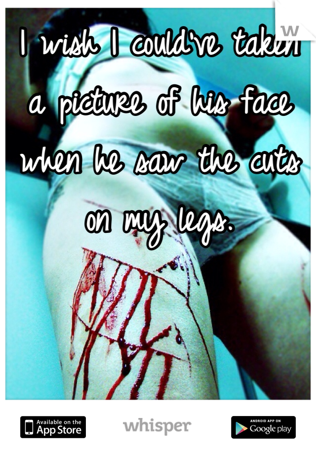 I wish I could've taken a picture of his face when he saw the cuts on my legs.