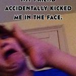 My friend accidentally kicked me in the face.
