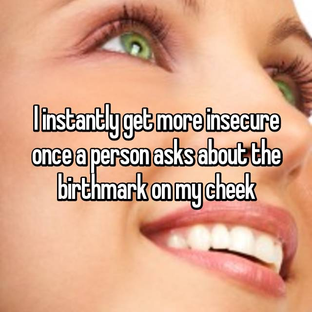 I instantly get more insecure once a person asks about the birthmark on my cheek