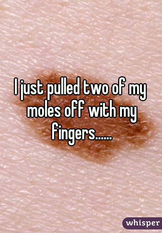 I just pulled two of my moles off with my fingers......